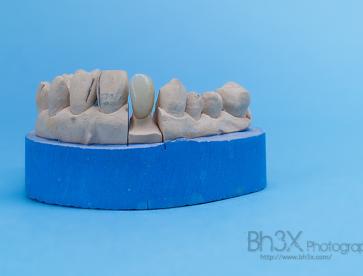 dental_exe-4-4